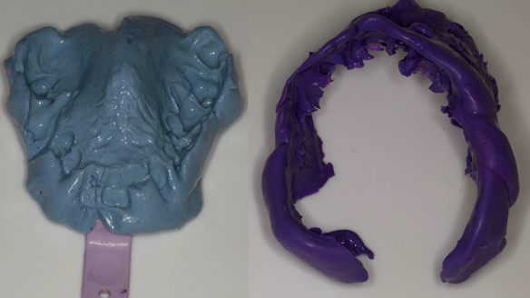 Figure 17 The two parts of the impression ready to fitted back together with superglue (cyanoacrylate adhesive)