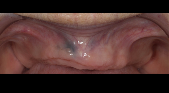 Figure 100 Ridge - resorption 12 months after extraction of teeth
