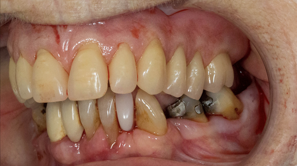 Figure 37 Mk 1 denture fitted immediately after extracting the teeth. Occlusion checked - even contact when patient closed together