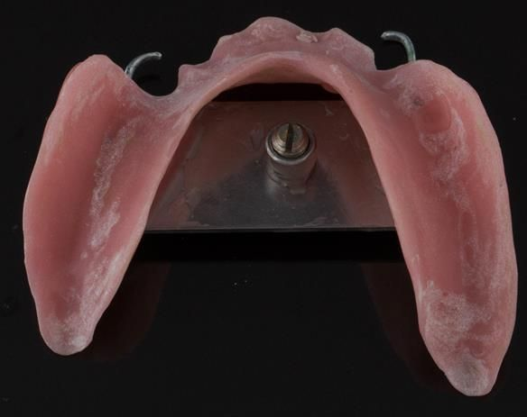 Figure 84 Visit 3 for Mk 2 fabrication. Inter-maxillary registration with central bearing apparatus made on light cured tray maker for accurate CR recording - mandibular fitting surface