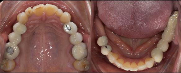 Figure 6 Pre - treatment.