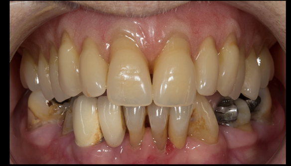 Figure 102 Mk 2 fitted definitive denture - Schottlander Enigmalife teeth teeth together - occlusion in CR