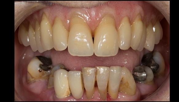 Figure 101 Mk 2 fitted definitive denture - Schottlander Enigmalife teeth