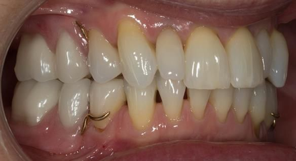 Figure 85 Definitive dentures fitted.