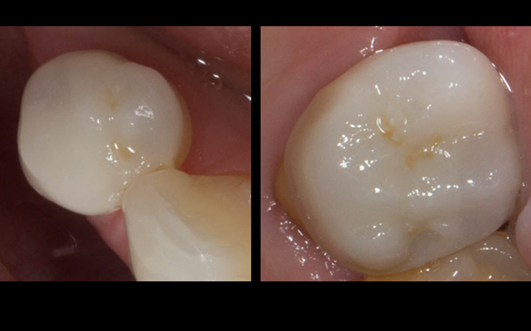 Figure 52 Porcelain fused to zirconia crown crowns incorporating parallel guiding surfaces, ledges and rest seats for the metal based partial dentures - fitted with Fuji plus cement.
