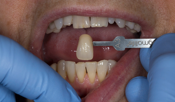 Figure 13 A3 shade of teeth prior to commencing treatment and whitening