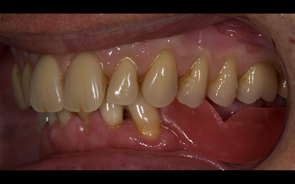 Figure 85 Visit 3 for Mk 2 fabrication. Inter-maxillary record of the maxillary Mk 1 denture. This allowed a copy of the Mk 1 to be mounted on the articulator to allow the Mk 2 denture to mimic the tooth arrangement. The patient was happy with the aesthet