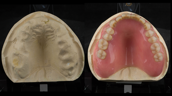 Figure 32 Prepared maxillary cast and the finished Mk 1 complete acrylic denture
