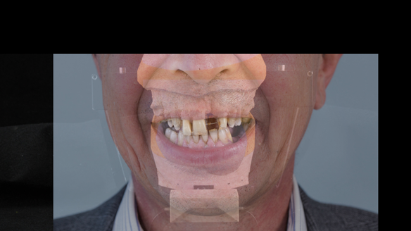 Figure 23 Superimposed photograph of the pretreatment smile onto the mounted casts