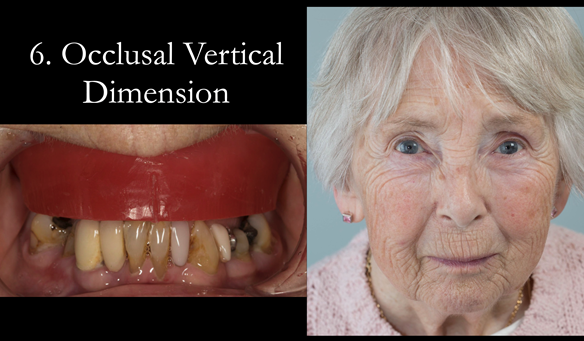 "Figure 73 The occluding vertical dimension is prescribed. ""If the patient looks right - they are right"""