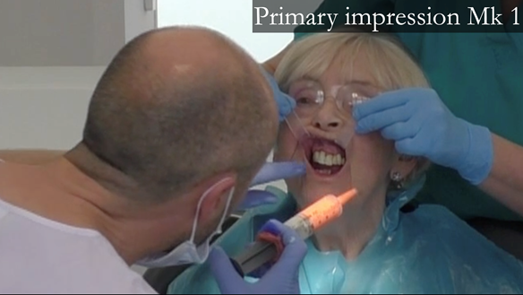 Figure 11 Primary impression taking