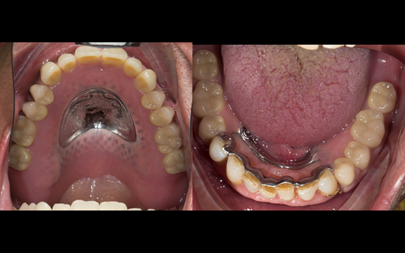 Figure 118 Mk 2 finished dentures fitted