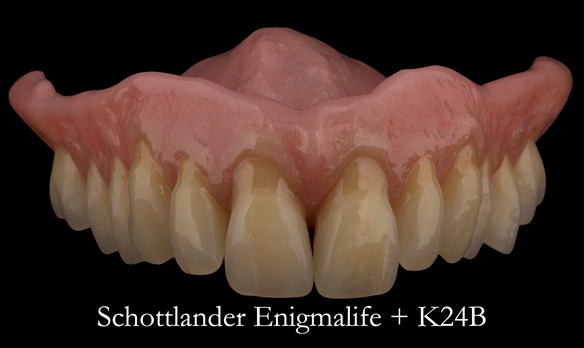 Figure 97 Mk 2 definitive denture finished - with characterisation