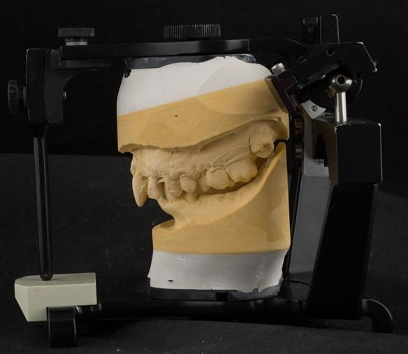 Figure 20 Cast for making the immediate complete denture with full depth of the sulcus recorded mounted in intercuspal position for Mk 1 denture. Mk 2 denture was made to centric relation using central bearing appliance