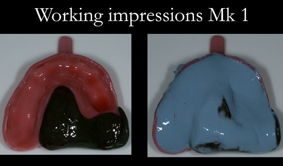 Figure 17 Alginate adhesive added. Dentsply Blueprint placed, glazed with running water and gloved finger.