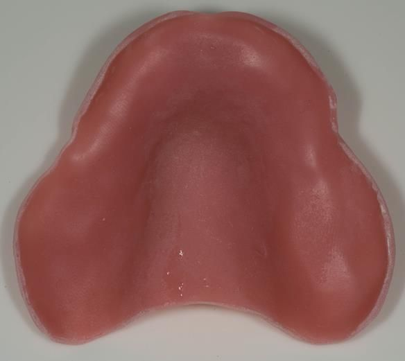 Figure 75 Maxillary spaced special tray for alginate