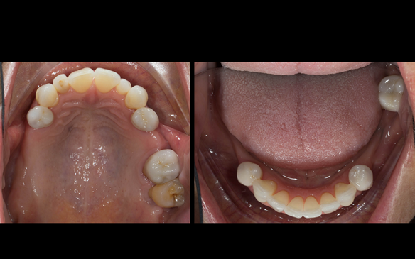 Figure 51 Porcelain fused to zirconia crown crowns incorporating parallel guiding surfaces, ledges and rest seats for the metal based partial dentures - fitted with Fuji plus cement.