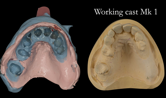 Figure 20 Left completed 2 part impression - right working cast for Mk 1 denture