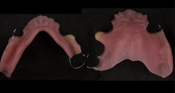 Figure 24 Finished immediate dentures - intaglio surfaces.
