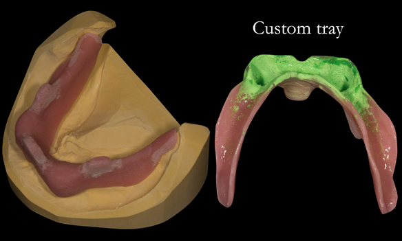 Figure 15 Custom tray for lower working impression. This is adjusted so that the impression pick ups for the locators do not touch the inside of the tray when this is seated in the mouth - ensures correct seating of the tray