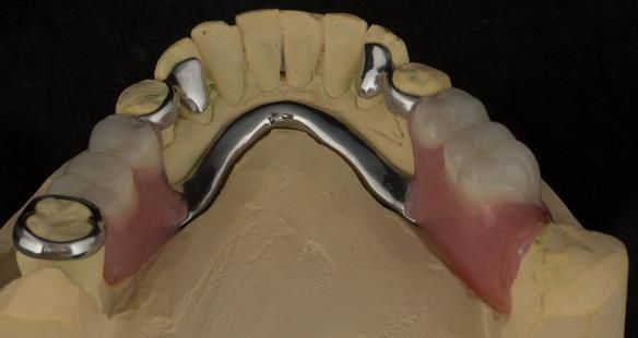 Figure 82 Finished definitive partial denture. Scandinavian design with sublingual bar - keeping the denture components 3mm away from the gingival margin