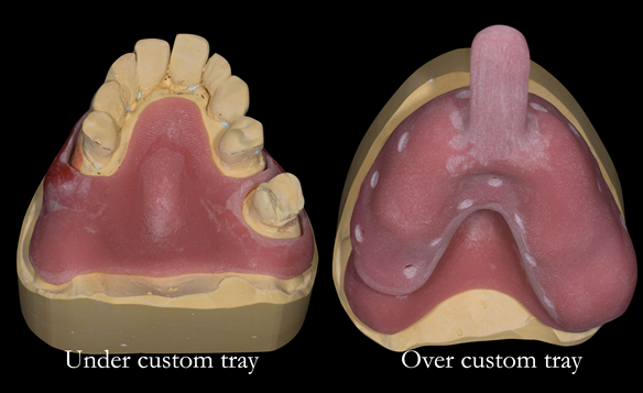 "Figure 14 Custom trays for the definitive impression, allowing impression making without the teeth ""getting in the way"". The under tray is for the edentulous parts. The over tray records the teeth."