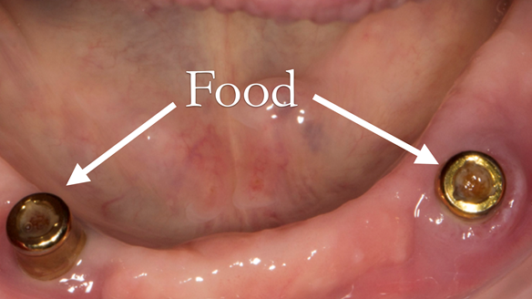 Figure 8 Food (particularly seeds) get pushed into the abutment centre resulting in the denture attachment not seating