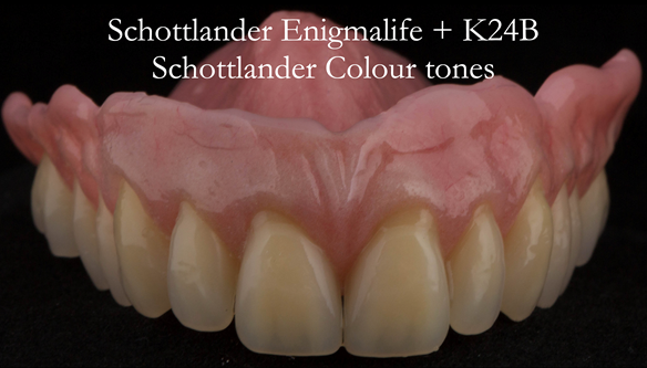 Figure 30 Finished upper immediate denture. Optimal extension of flanges via the 2 part impression process - figures 14 - 20