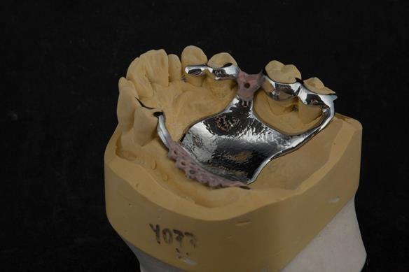 Figure 72 cobalt chromium framework - Scandinavian design - keeping the denture components 3mm away from the gingival margin.