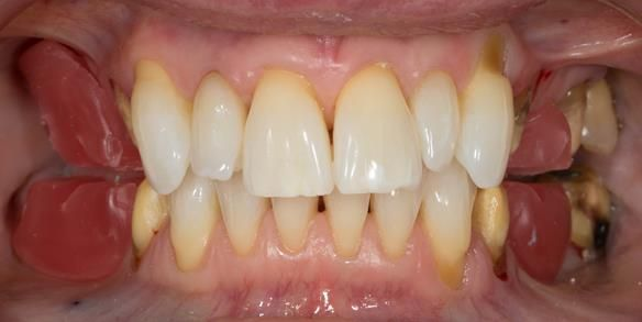 Figure 46 Upper and lower wax registration rims trimmed with space between them and the anterior teeth contact in ICP.