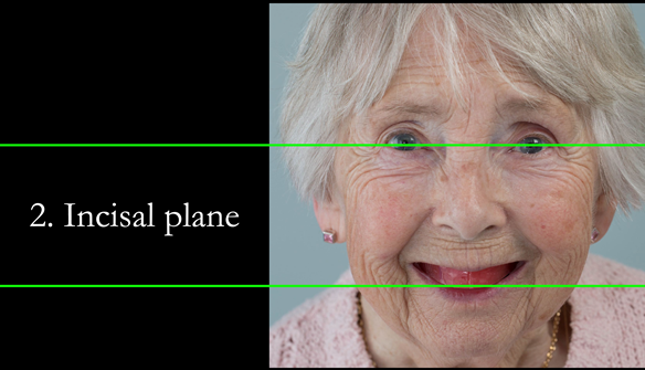 Figure 69 The incsial plane is generally carved parallel to the inter-pupillary plane