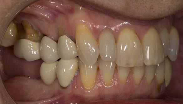 Figure 4 Pre - treatment.