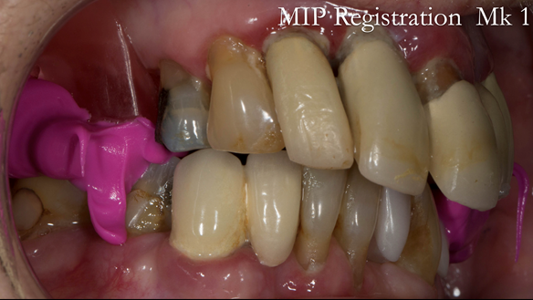 Figure 22 Registration visit with wax rim - teeth in maximum intercuspation - recorded with Futar D