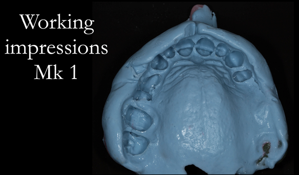 Figure 18 Working impression for Mk 1 denture.