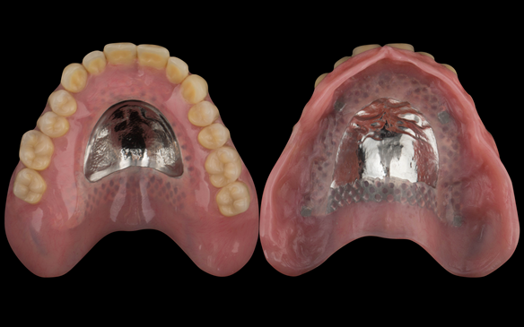 Figure 104 Mk 2 maxillary based denture with acrylic post dam which I find results in increased suction (retention) and enables relining in the future should this be needed