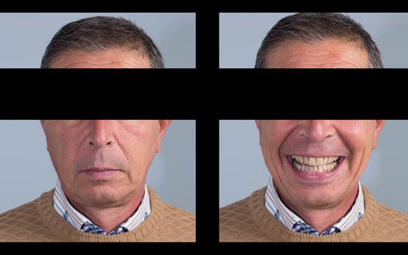 Figure 61 5 months post fitting of Mk 1 immediate dentures