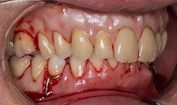 Figure 46 Visit 2 fitting of Mk 1 upper complete and lower partial immediate dentures