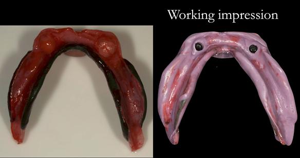 Figure 16 Lower working impression. Border moulded in greenstick followed by Impregum impression with full border moulding