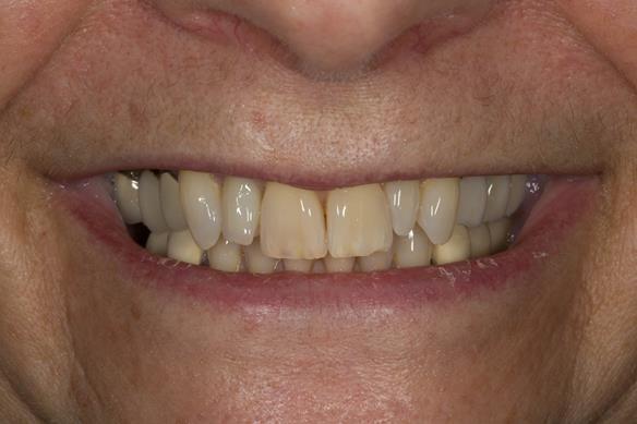 Figure 2 Pre - treatment.