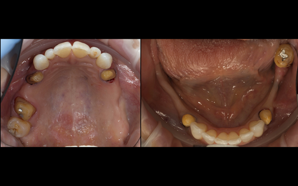 Figure 44 Porcelain fused to zirconia crown preparations (previously bridge abutment crowns).