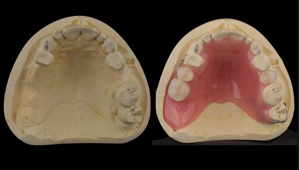 Figure 22 Finished upper immediate denture. Schottlander Enigmalife teeth.
