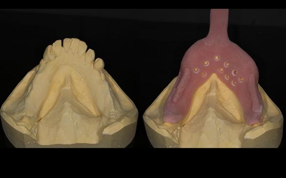 Figure 70 Mandibular primary cast and special tray for Mk 2 denture