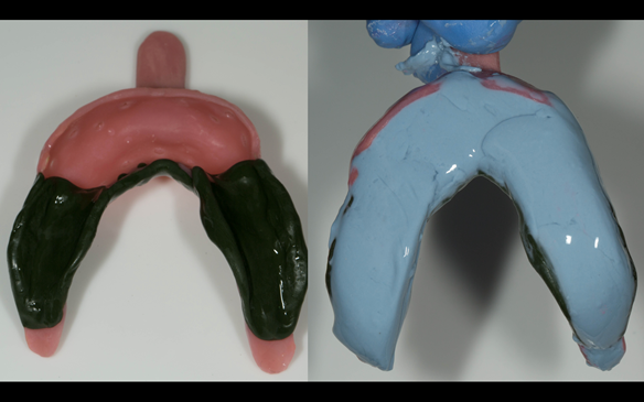 Figure 72 greenstick on saddles border moulded. Adhesive placed (blueprint) alginate mixed, glazed with wet finger and ready to take the impression