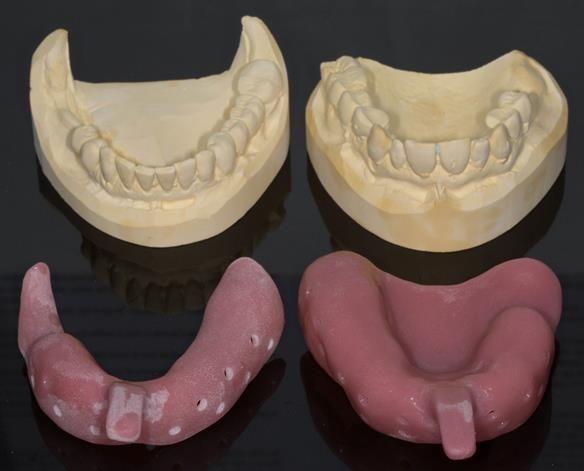 Figure 15 Custom trays for the definitive impression for Mk 1 dentures