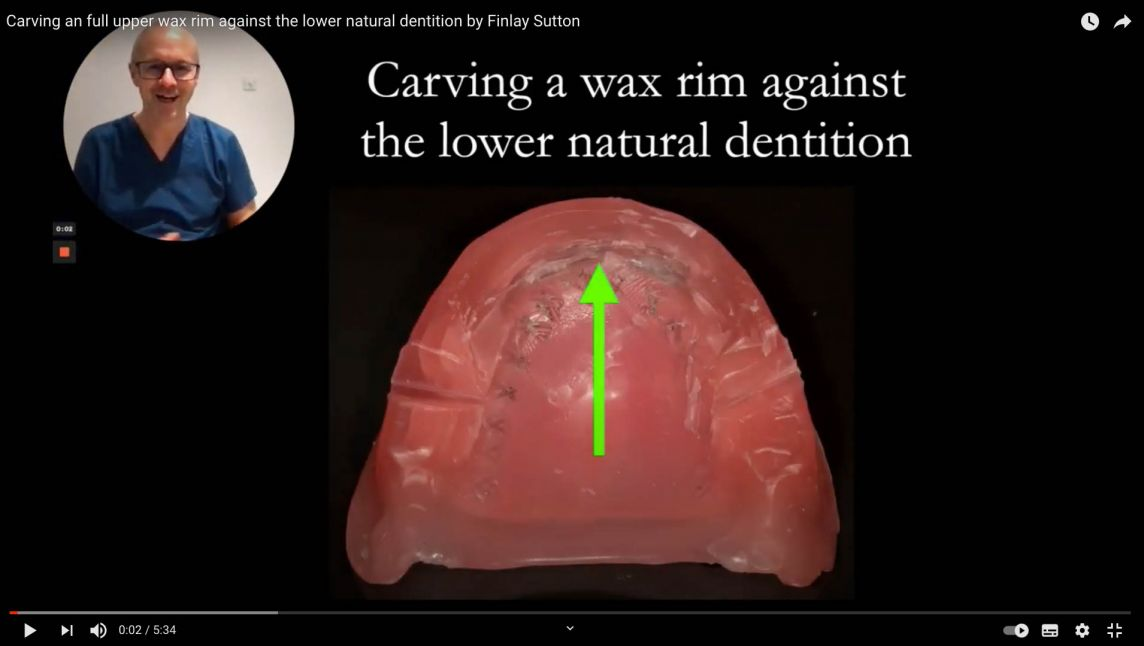 Carving a full upper wax rim against the lower natural dentition