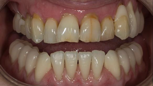 Figure 31 Finished denture mimicking the natural teeth. Schottlander Enigmalife denture teeth and Dental D clasps