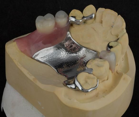 Figure 77 Finished definitive partial denture. Scandinavian design - keeping the denture components 3mm away from the gingival margin