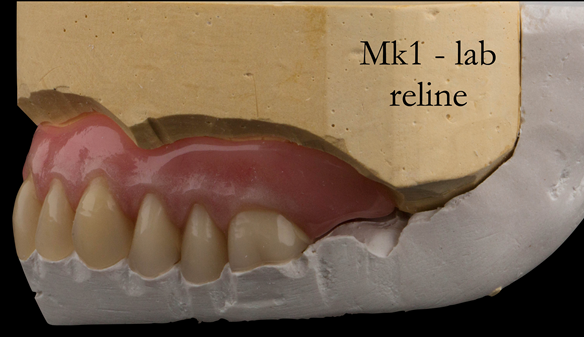 Figure 53 Reline cast and relined denture. The occlusal key in white plaster maintains the vertical dimension