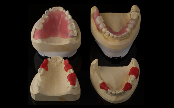 Figure 27 Finished immediate dentures and preparation guides for sectioning the bridges to create guide surfaces allowing accurately fitting immediate dentures