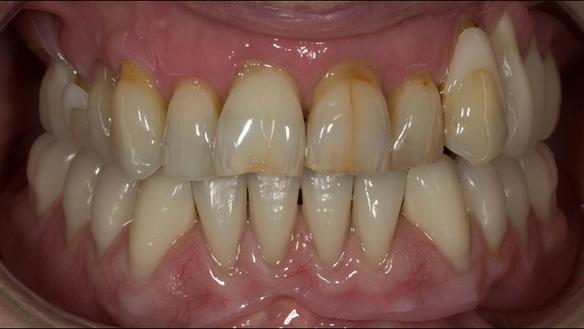 Figure 32 Finished denture mimicking the natural teeth. Schottlander Enigmalife denture teeth and Dental D clasps